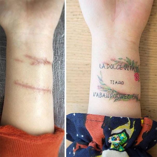 是將身體上醜醜的傷疤變成美麗的藝術紋身這篇文章的首圖