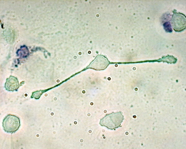 是[科技新報]帕金森氏症治療展望: 巨噬細胞木馬屠城這篇文章的首圖